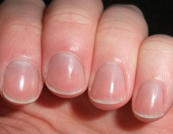 dijagnostika nokti